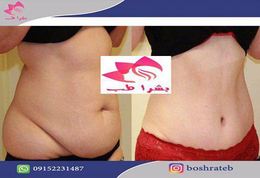 http://boshrateb.com/store/files/gallery/1024-6199-pic.jpg