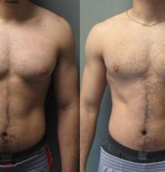 تصغير الثدي لدى الرجال (التثدي)