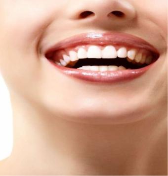 ابتسامة هوليود أو القشرة الاسنان