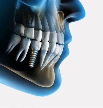 زراعة الاسنان في ايران و ما يستلزم المعرفه عنه
