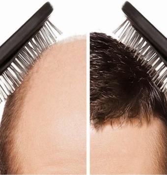 انواع زراعة الشعر